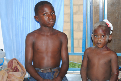 Young victims of bomb blast in Kaduna.