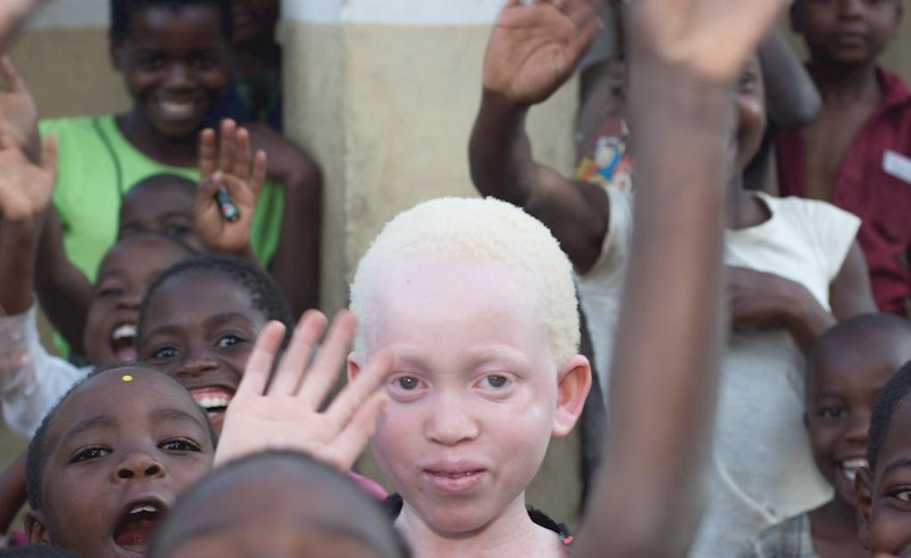 Superstition, Albino