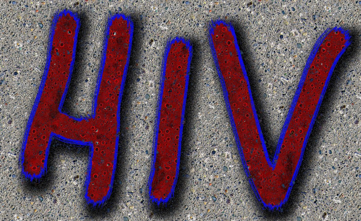 Botswana: Pandemic Affects HIV Self Testing Roll-Out Plan
